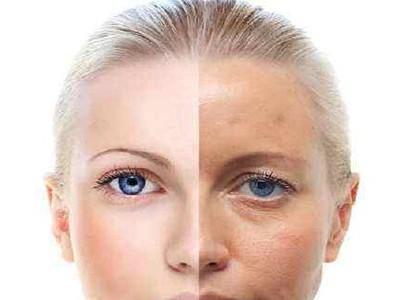 护肤品代加工厂淡斑护肤经验分享