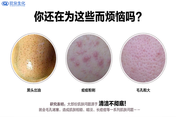 共同探讨下保养肌肤的技巧-欧泉生化