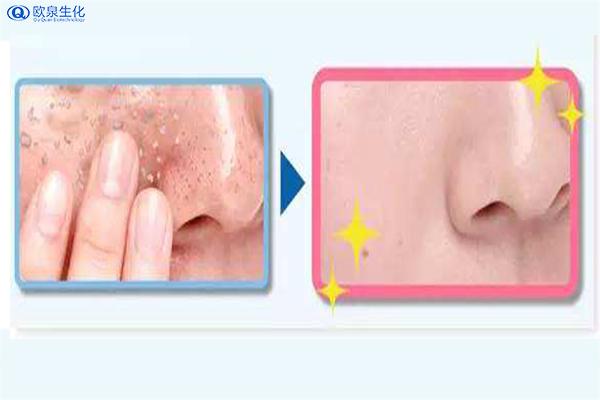 不同类型的皮肤怎么去角质-欧泉生化