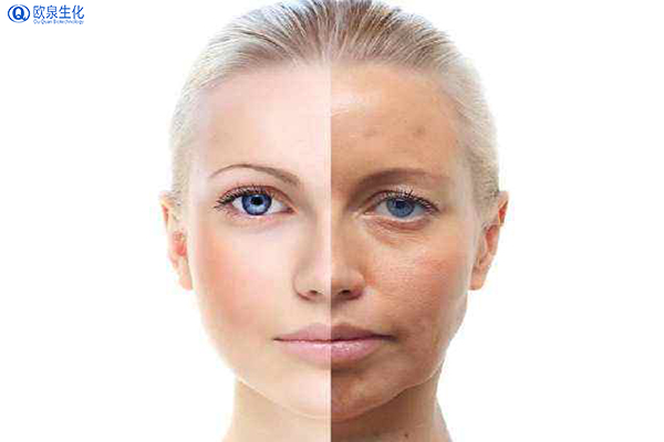 理性认识和使用祛斑靓肤类化妆品-欧泉生化