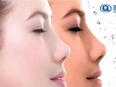 美妆厂家帮你分析毛孔粗大的原因