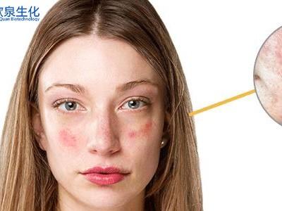 美妆厂家:你的肌肤会脸部红潮吗?