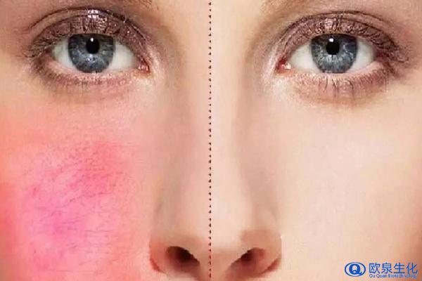 美妆厂家:你的肌肤会脸部红潮吗?-欧泉生化