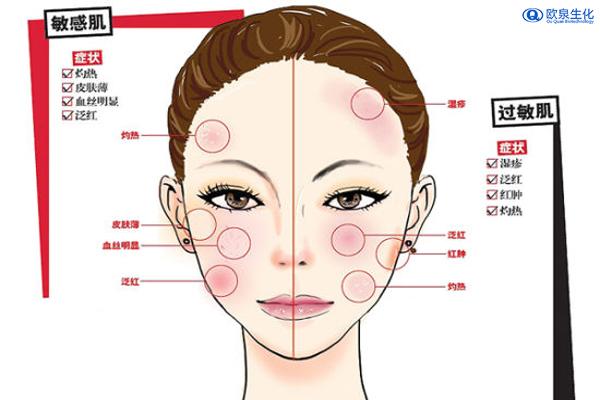 为什么会存在敏感肌-欧泉生化