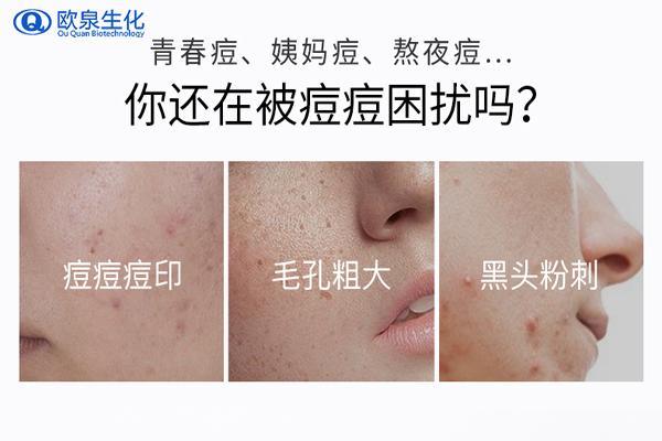你脸上的痘痘允许你继续护肤化妆吗?-欧泉生化