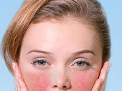 过敏性肌肤用哪种护肤品好?