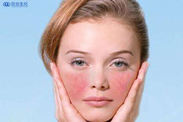 过敏性皮肤用哪种护肤品好-欧泉生化