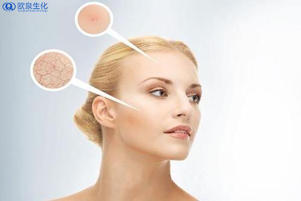 如何让肌肤远离粗糙-欧泉生化