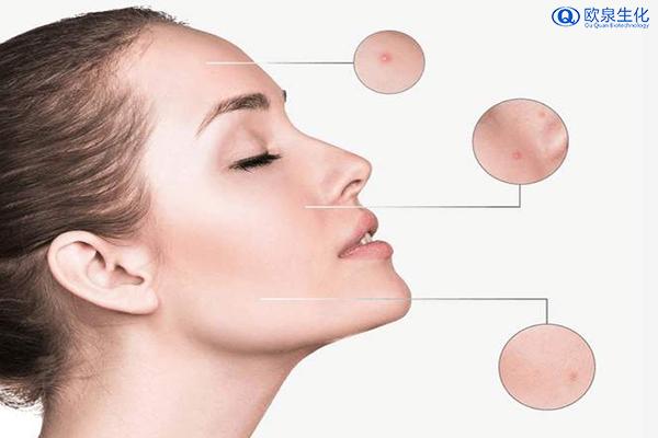 夏季防止长痘痘的方法-欧泉生化