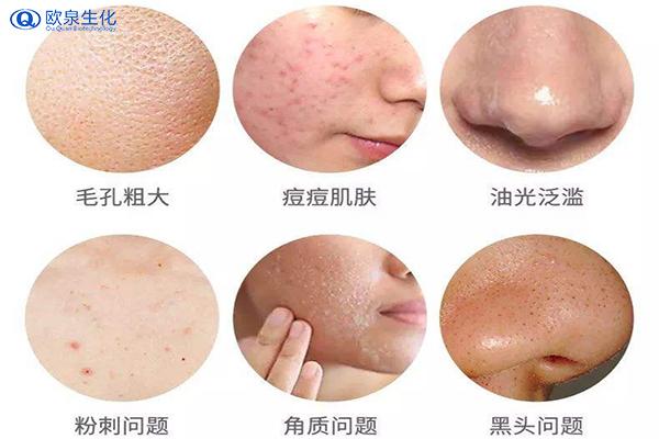 肌肤长痘痘能涂防晒霜吗?