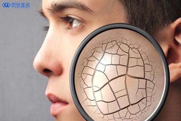 干皮不可缺少的三款护肤单品-欧泉生化