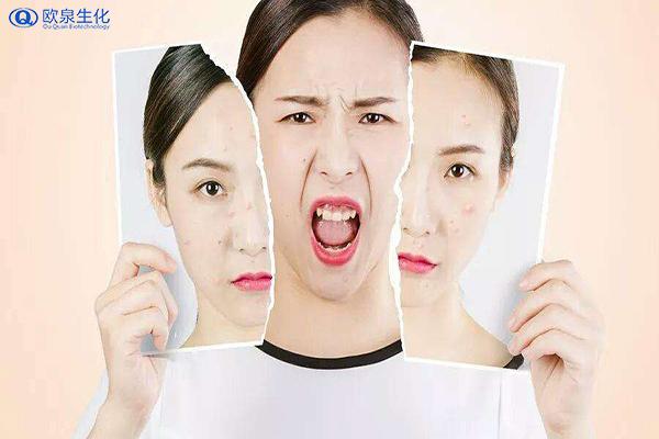 皮肤大出油,这四个地方要注意-欧泉生化