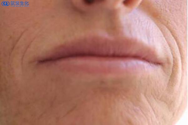 欧泉教你如何去除嘴角皱纹-欧泉生化