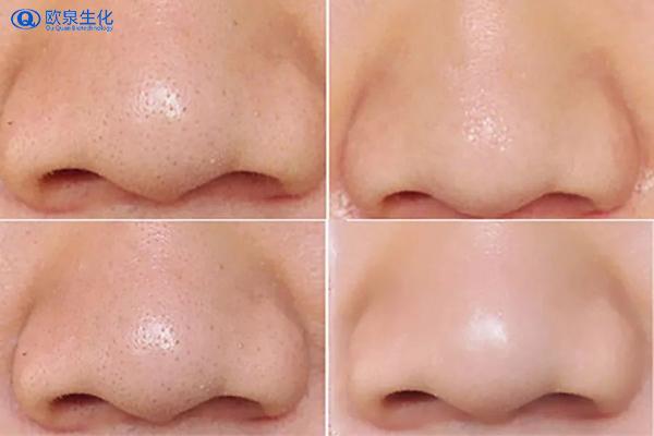 美妆厂家告诉你毛孔堵塞的症状-欧泉生化