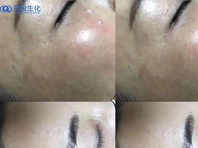 化妆品厂家教你对付黑斑的方法