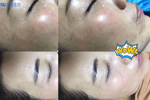 化妆品厂家教你对付黑斑的方法-欧泉生化