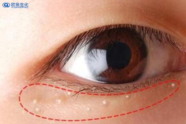 眼周围有脂肪粒可以这样做-欧泉生化