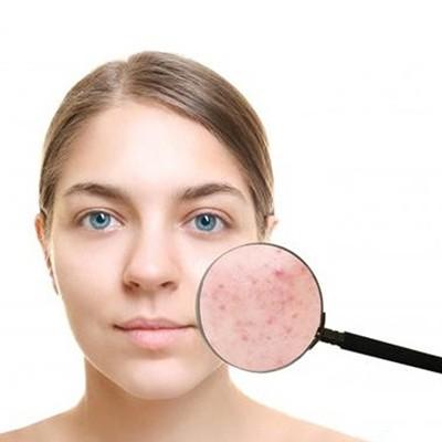 化妆品厂家:内勤外勤控油补水要点
