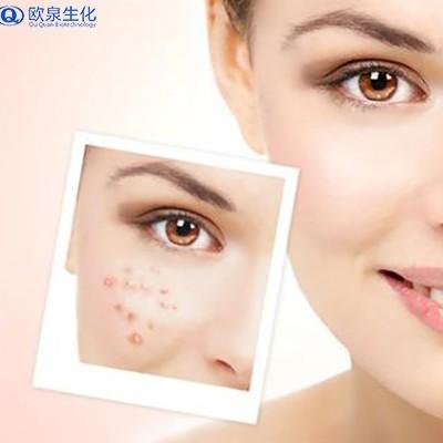 护肤品厂家:痘痘长期存在的原因