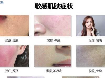 干性敏感肌肤的正确护肤