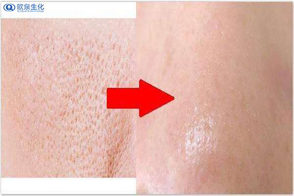 化妆品加工厂家教你几种收缩毛孔的方法-欧泉生化